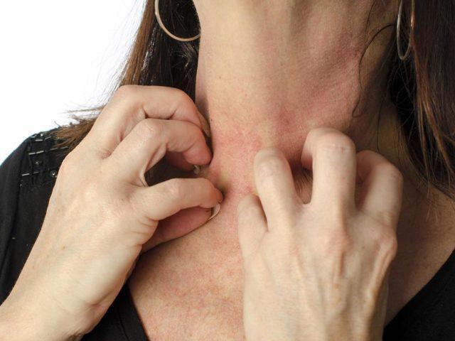 Забрус: лечебные свойства и противопоказания, как принимать в лечебных целях